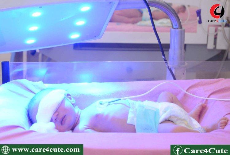 नवजात शिशु में पीलिया के लक्षण, बचाव और  उपचार !