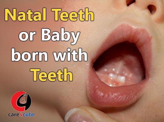 Natal Teeth or Baby Born With Teeth