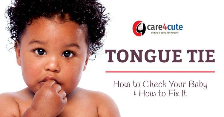 Tongue-tie in Kids